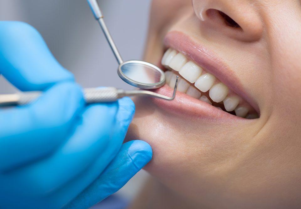 eliminar el sarro de los dientes