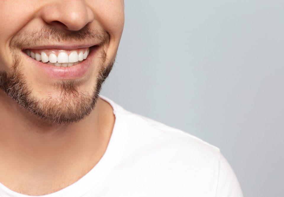 cómo cuidar mi diseño de sonrisa