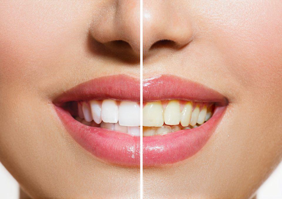 Tener dientes blancos