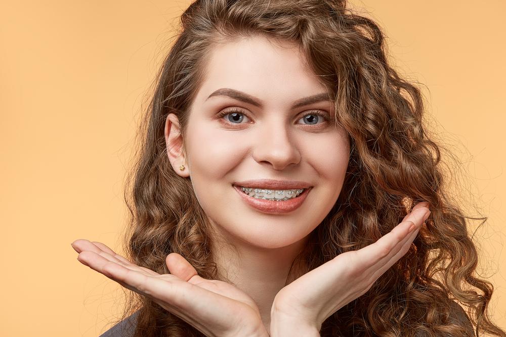Tipos de brackets dentales