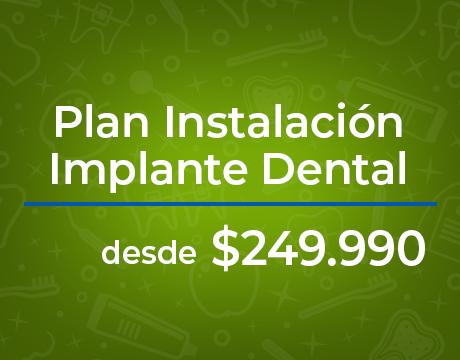 promoción-implantes